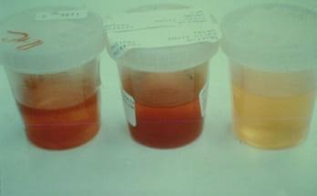 Nước tiểu bị viêm cầu thận